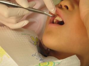 乳歯抜歯スタート